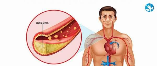Алкоголь и холестерин