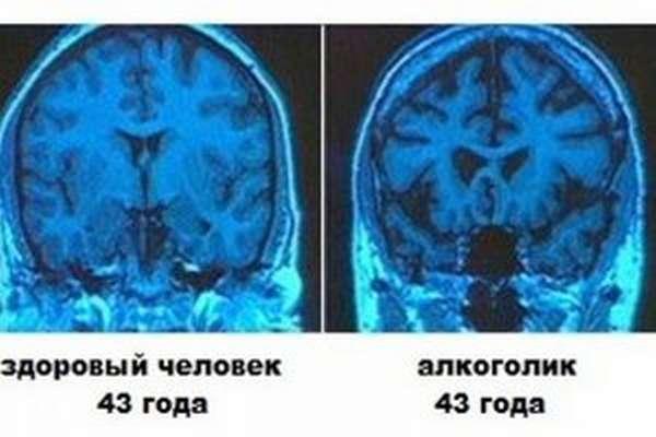 Методы лечения алкогольной энцефалопатии