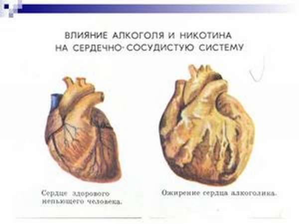 Как алкоголь вредит сердцу