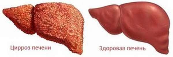 Заболевания от алкоголя