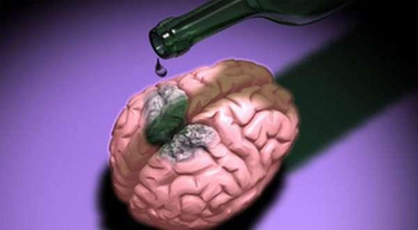 Что делает алкоголь с мозгом