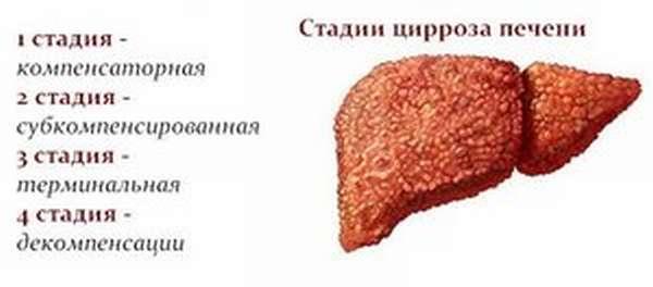 Факторы влияющие на развитие цирроза печени