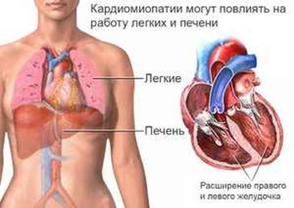 Форма заболевания