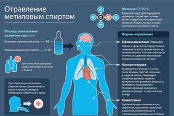 Интоксикация метиловым спиртом