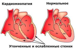 Какие методы применяются при лечении алкогольной кардиопатии