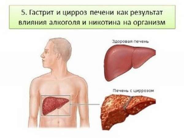 Какие виды цирроза печени бывают