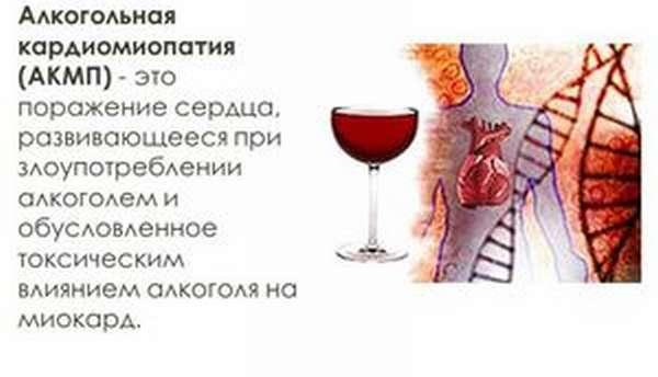 Как лечат алкогольную кардиомиопатию