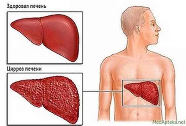 Описание стадий цирроза печени