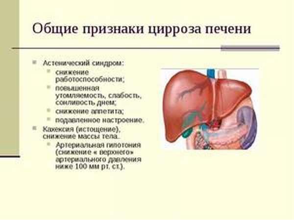 Как определить цирроз печени