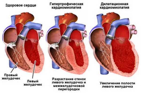 Как определить стадию заболевания