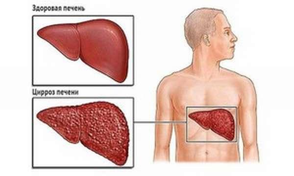 Основные симптомы цирроза печени