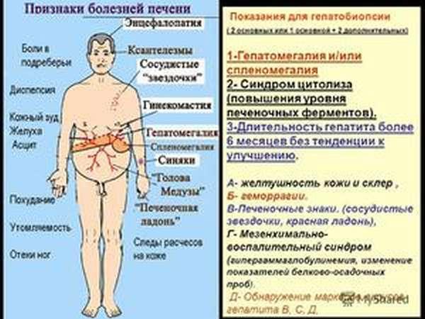 Первые симптомы заболевания печени