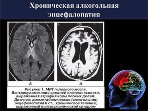 Разновидности алкогольных энцефалопатий