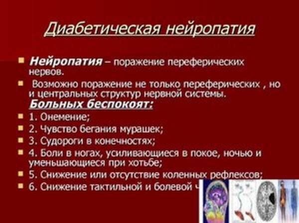 Признаки алкогольной полинейропатии