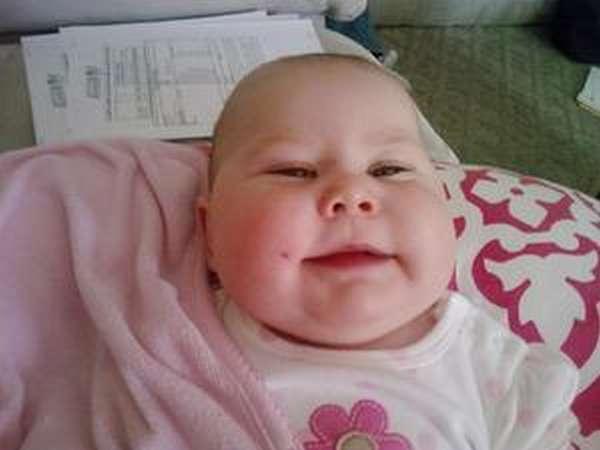 Признаки ФАС у новорожденных