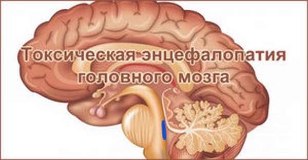 Как происходит алкогольная токсическая энцефалопатия