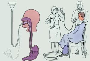 Как промывать желудок