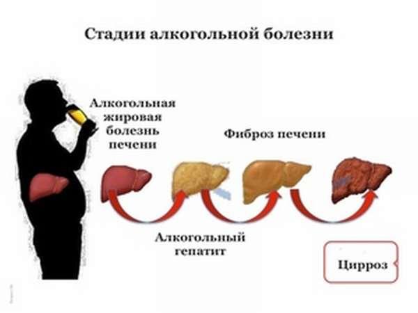 Развитие цирроза печени