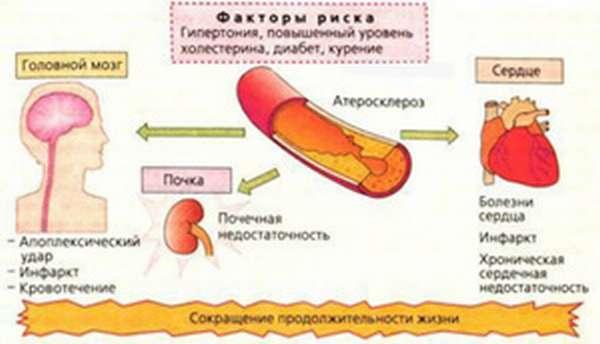 Риски развития Гипертонии