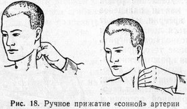 фото точки на теле человека для усыпления фото называет звуки слоги