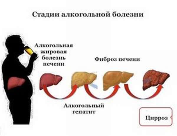 Как страдает печень от алкоголя