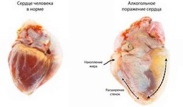 Как страдает сердце при приеме алкоголя