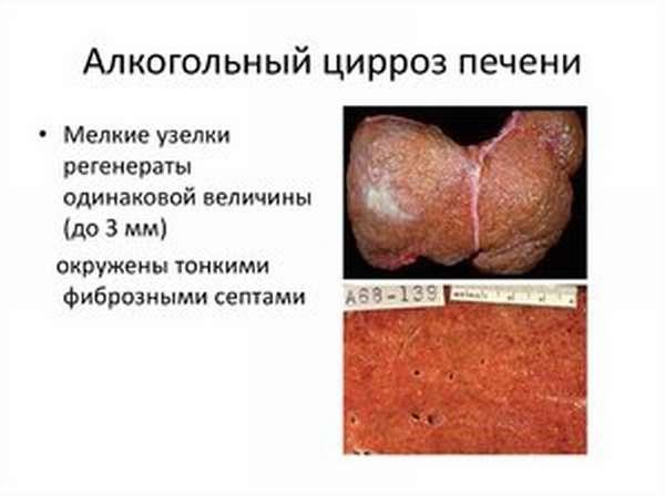 Медикаментозное лечение церроза печени