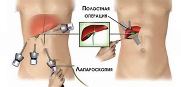 Восстановление после операции