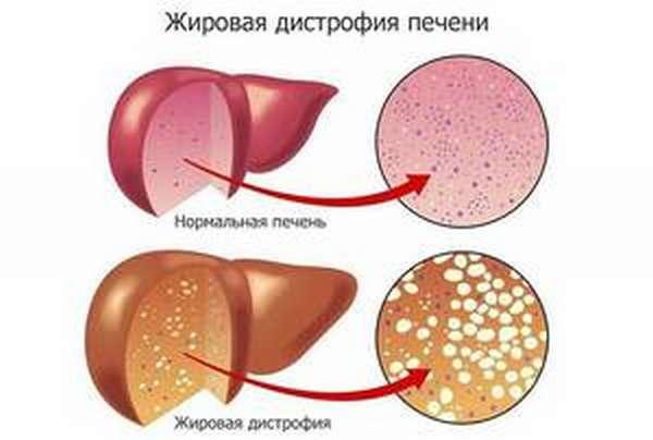 Заболевания при алкоголизме