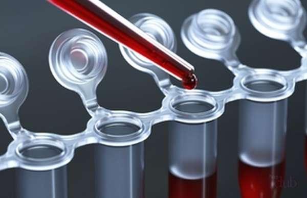 Забор крови для исследования на алкоголь