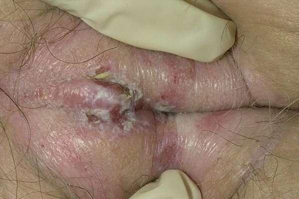 Проявления грибка на вульве
