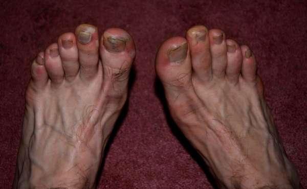 Ноги пораженные грибковой инфекцией