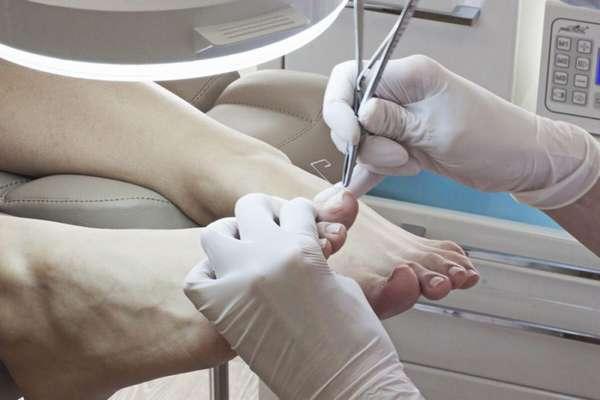 Процедура удаления ногтя на ноге