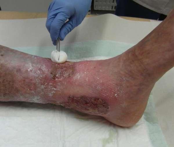 Лечение гонгрены на ноге