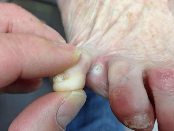 Пораженные грибком пальцы ноги