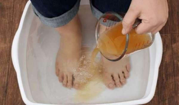 Антигрибковая ванночка