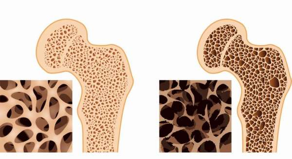 Нормальная и хрупкая кости