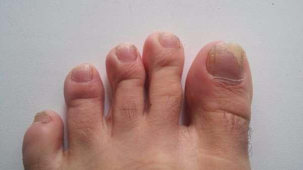 Ногти зараженные грибком