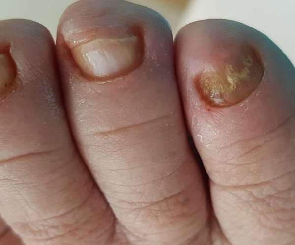 Грибок на пальце ноги