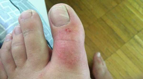 Покраснение кожи возле ногтя