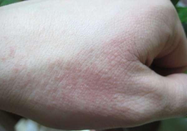 Раздражение кожи