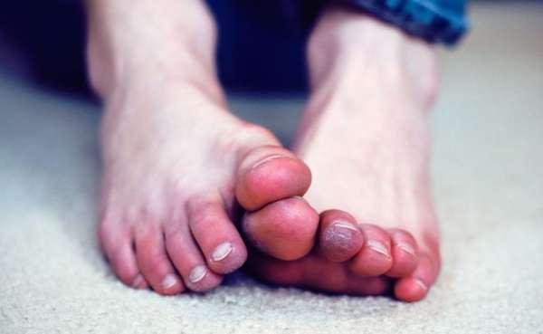Покраснение на пальцах ног