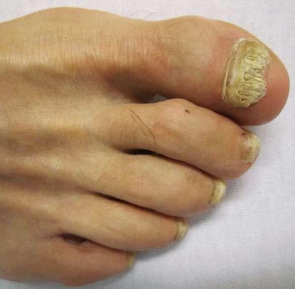 Разрушенный грибком ноготь