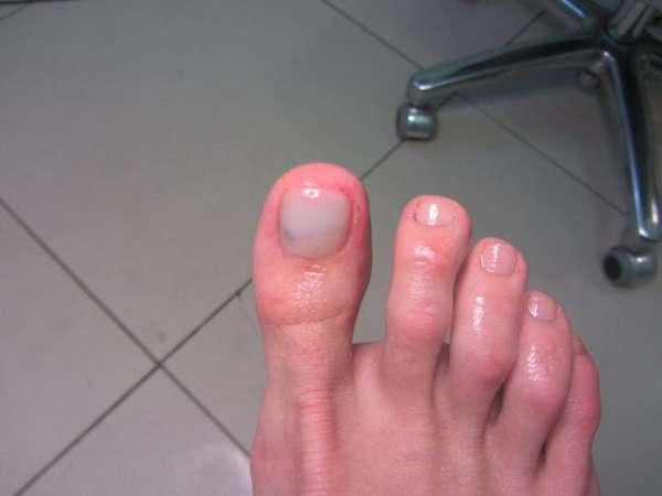 Покраснение кожи на ногах