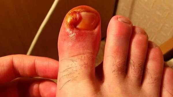 Воспаление ногтя
