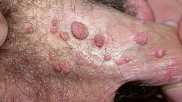 Генитальные кондиломы