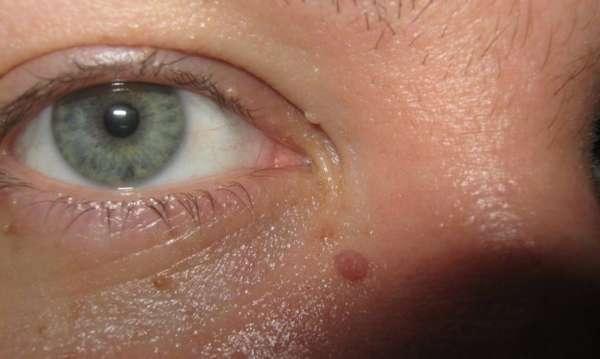 Папилломы возле глаза