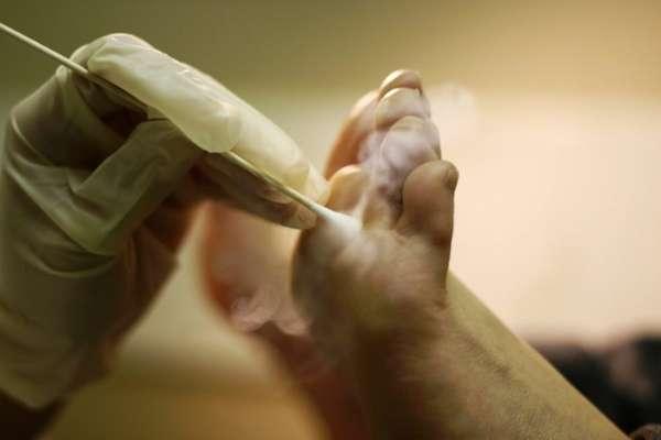 Удаление подошвенной бородавки азотом