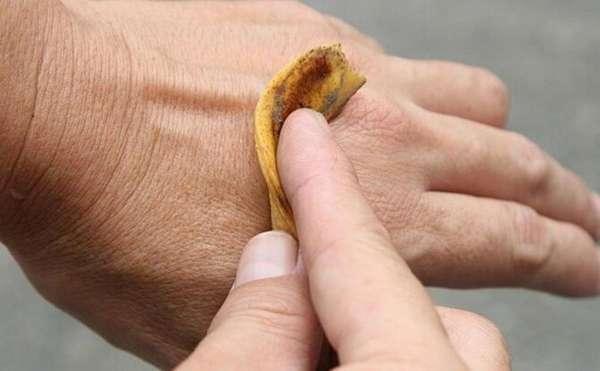 Банановая кожура от бородавки