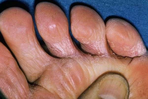 Шелушение кожи на пальцах ноги